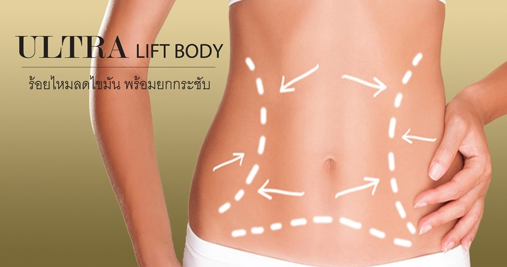Ultra Lift Body (HIFU technology)